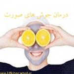 درمان خانگی جوش های صورت