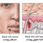 سادهترین راهکارها برای پیشگیری از سرطان پوست