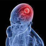 علایمی که شایدمنجر به تومور مغزی شود